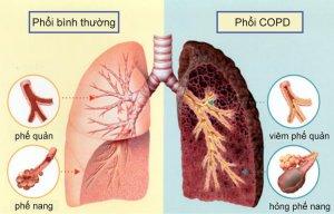Những dấu hiệu sau đây có thể khiến phổi của bạn đang gặp nguy hiểm